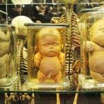 El espeluznante museo Vrolik, en Ámsterdam